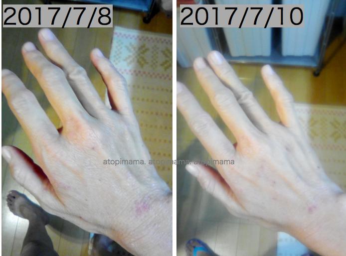 手湿疹,主婦湿疹,アレルナイトプラス
