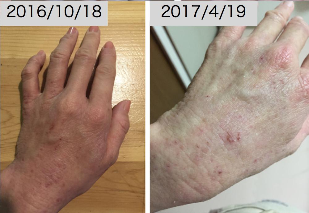 アトピー,手湿疹,改善