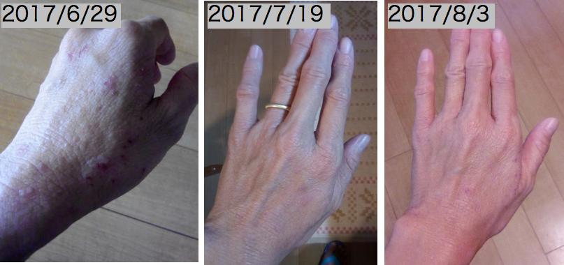 手湿疹,アトピー,アレルナイトプラス